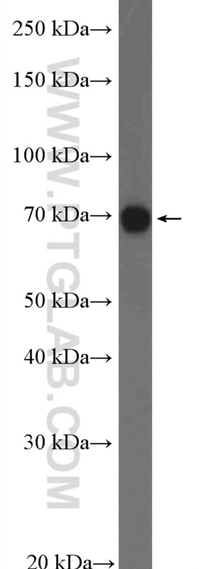 KCNK5 Rabbit anti-Human, Mouse, Rat, Polyclonal, Proteintech 20 μL; Unconjugated Ver productos