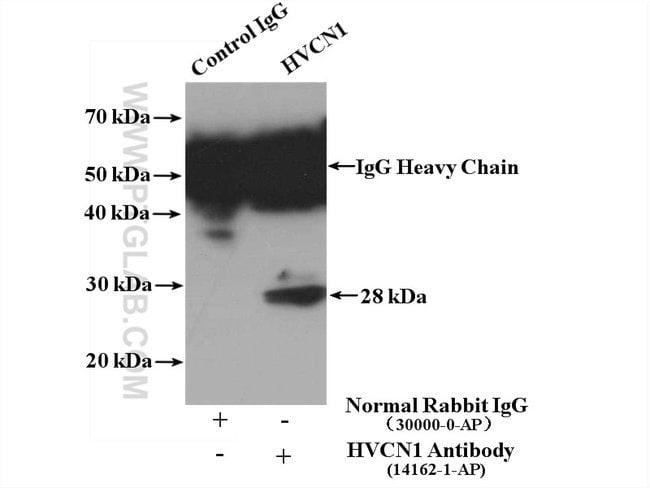 HVCN1 Rabbit anti-Human, Polyclonal, Proteintech 150 μL; Unconjugated Produkte