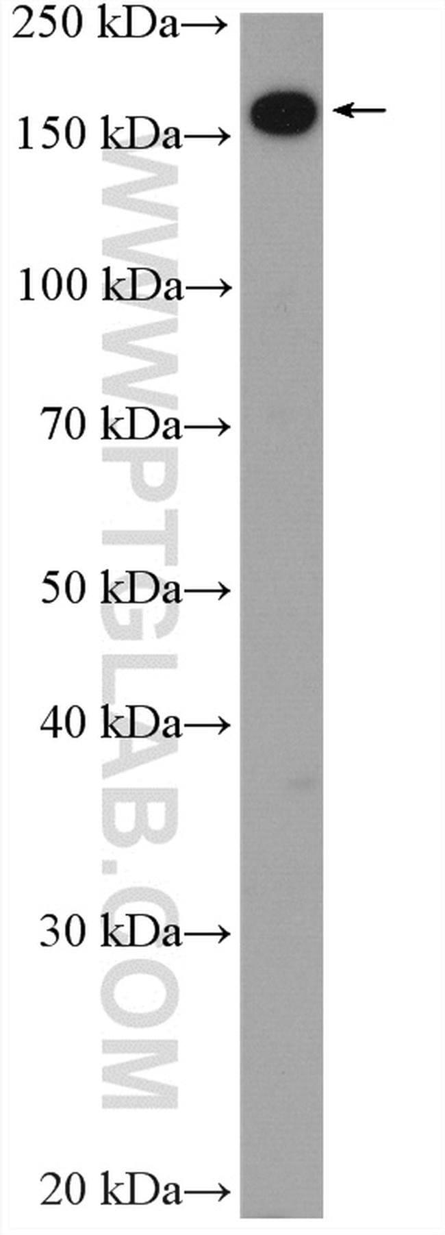UGCGL1 Rabbit anti-Human, Mouse, Rat, Polyclonal, Proteintech 150 μL; Unconjugated voir les résultats