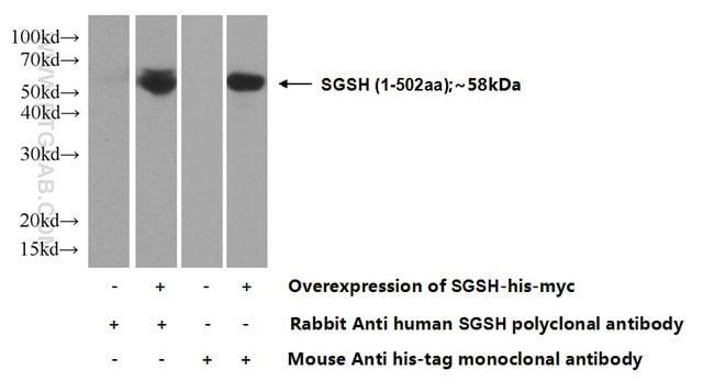 SGSH Rabbit anti-Human, Polyclonal, Proteintech 150 μL; Unconjugated voir les résultats