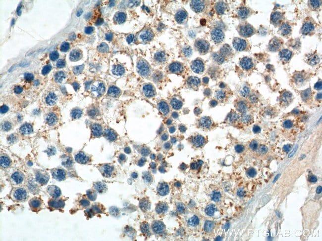 PIWIL2 Rabbit anti-Human, Mouse, Rat, Polyclonal, Proteintech 150 μL; Unconjugated voir les résultats