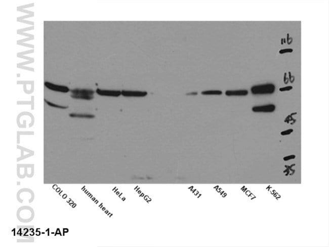 Kv1.2 Rabbit anti-Human, Mouse, Rat, Polyclonal, Proteintech 150 μL; Unconjugated voir les résultats