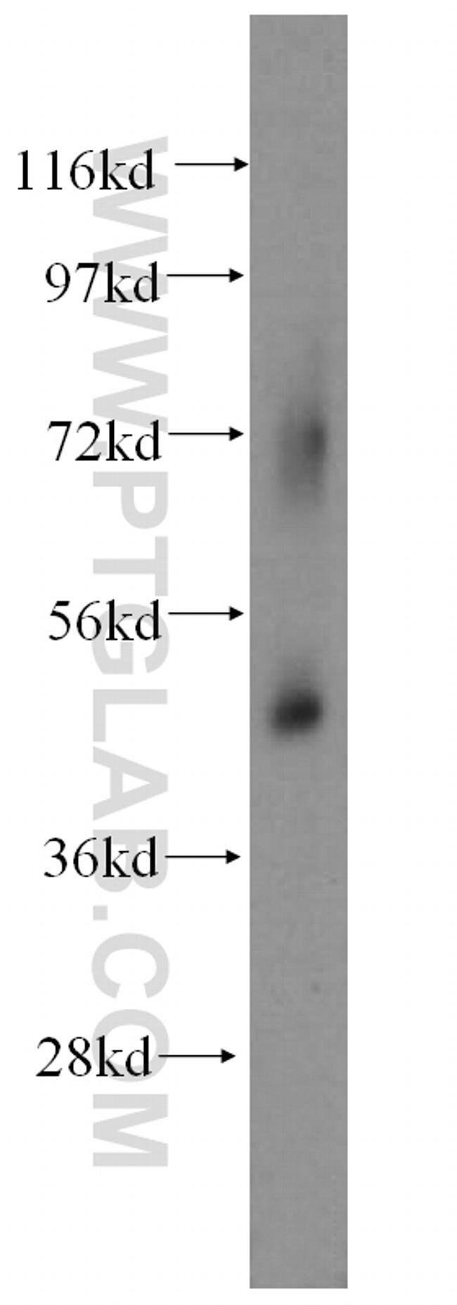 SUCLG2 Rabbit anti-Human, Mouse, Rat, Polyclonal, Proteintech 150 μL; Unconjugated voir les résultats
