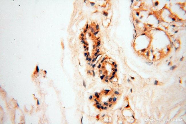 BIN2 Rabbit anti-Human, Polyclonal, Proteintech 150 μL; Unconjugated voir les résultats