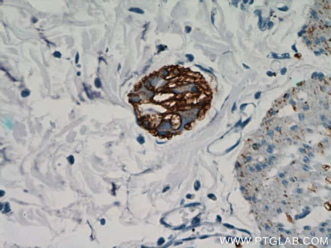 NCAM1/CD56 Rabbit anti-Human, Mouse, Rat, Polyclonal, Proteintech 150 μL; Unconjugated Produkte
