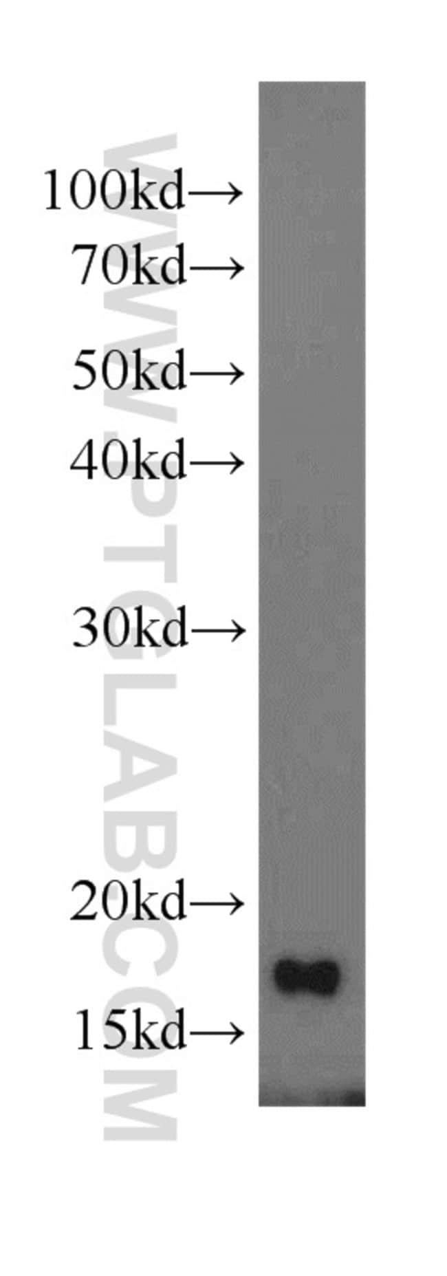 MTP18 Rabbit anti-Human, Mouse, Rat, Polyclonal, Proteintech 150 μL; Unconjugated voir les résultats