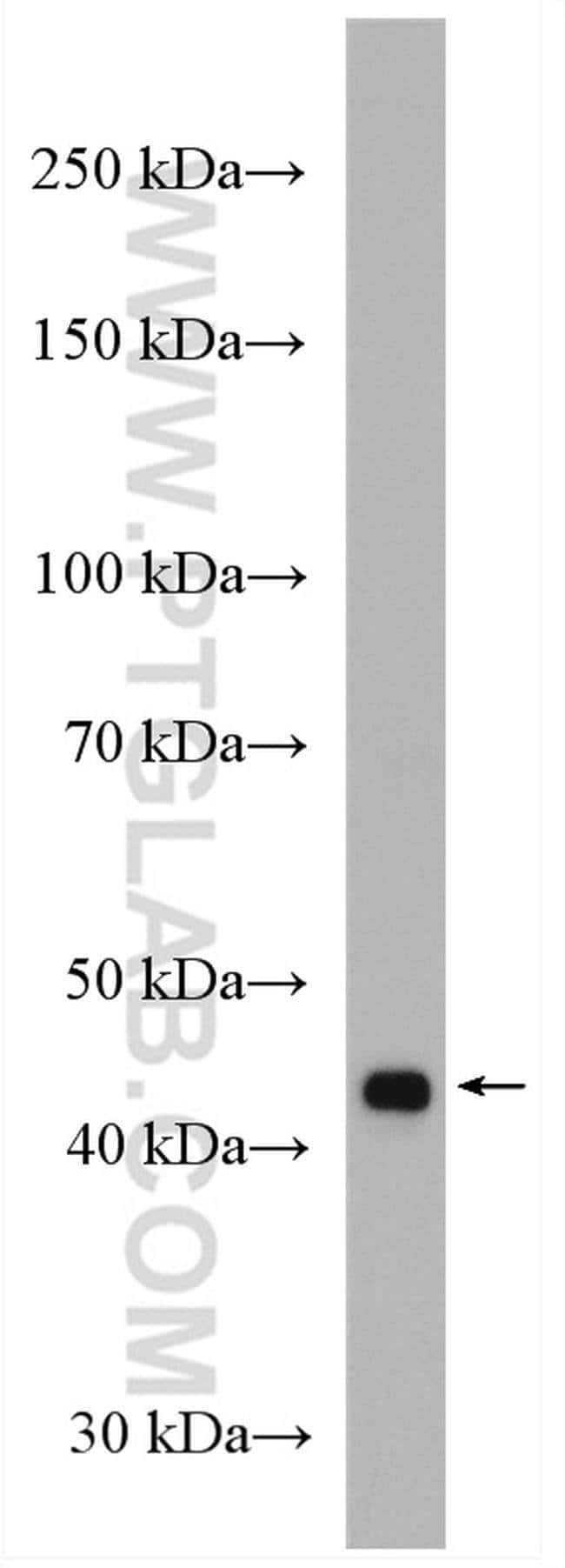 VPS36 Rabbit anti-Human, Polyclonal, Proteintech 150 μL; Unconjugated Produkte