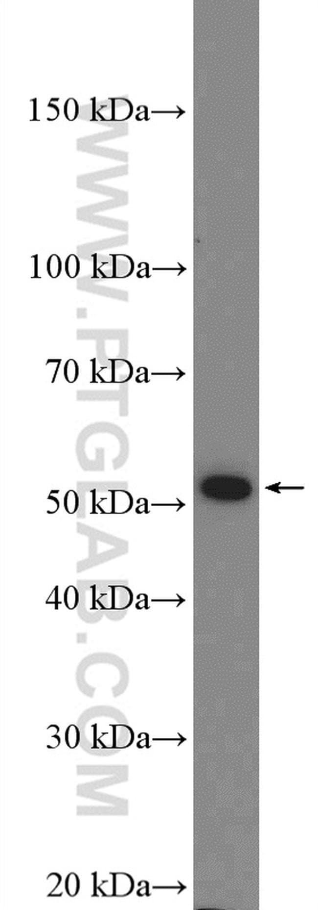 ADRA2A Rabbit anti-Human, Mouse, Rat, Polyclonal, Proteintech 20 μL; Unconjugated Ver productos