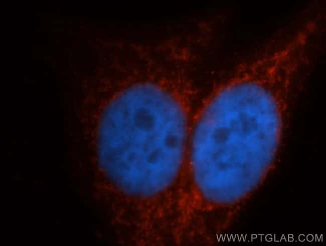 ITPKA Rabbit anti-Human, Mouse, Rat, Polyclonal, Proteintech 150 μL; Unconjugated Produkte