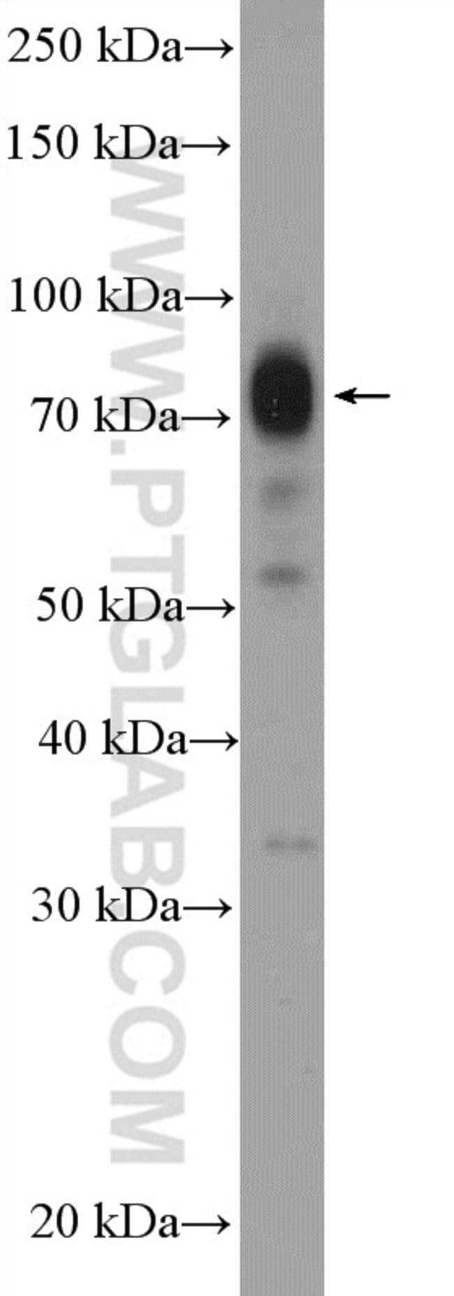 APPL2 Rabbit anti-Human, Mouse, Rat, Polyclonal, Proteintech 150 μL; Unconjugated voir les résultats