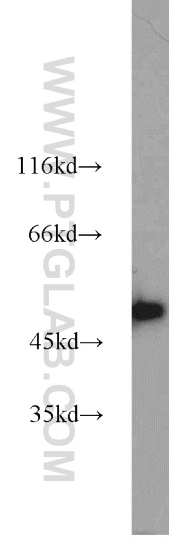 GLUD1 Rabbit anti-Human, Mouse, Rat, Polyclonal, Proteintech 150 μL; Unconjugated Produkte