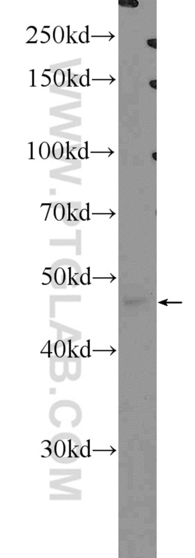 SCRN1 Rabbit anti-Human, Mouse, Rat, Polyclonal, Proteintech 20 μL; Unconjugated Ver productos