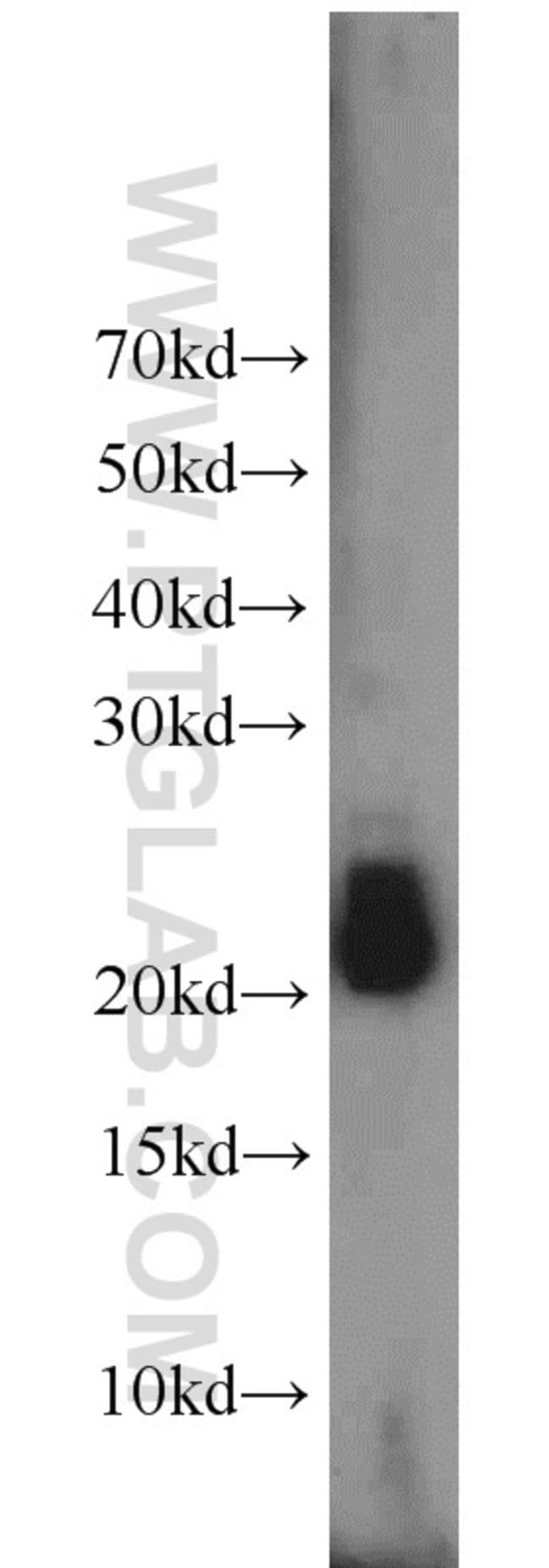 RHOB Rabbit anti-Human, Mouse, Polyclonal, Proteintech 20 μL; Unconjugated Ver productos