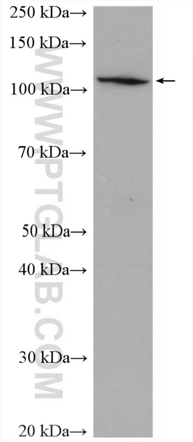 ADAR1 Rabbit anti-Human, Mouse, Porcine, Rat, Polyclonal, Proteintech 150 μL; Unconjugated Produkte