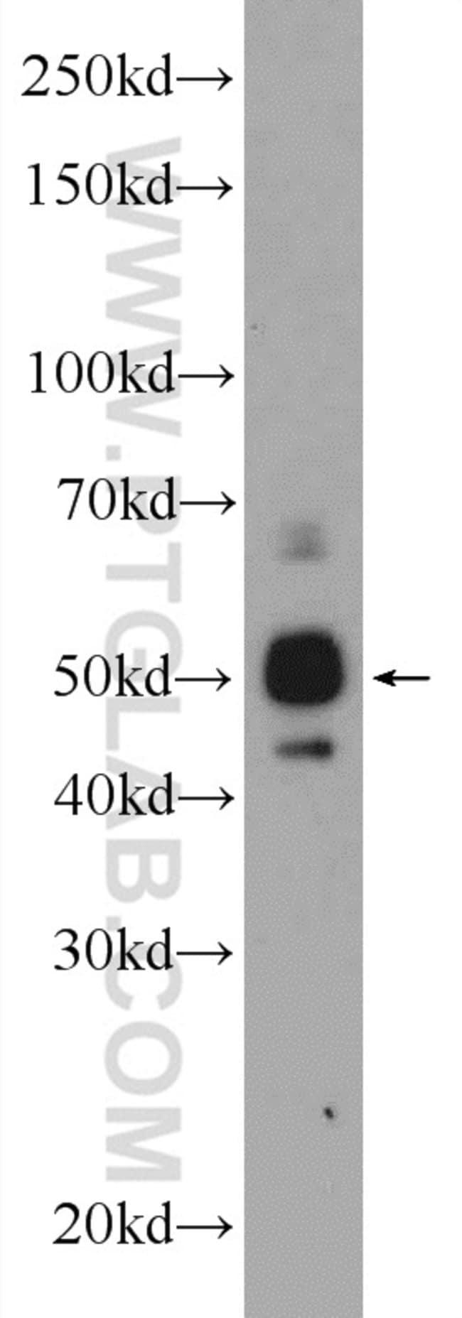 ST6GAL1 Rabbit anti-Human, Mouse, Rat, Polyclonal, Proteintech 150 μL; Unconjugated voir les résultats