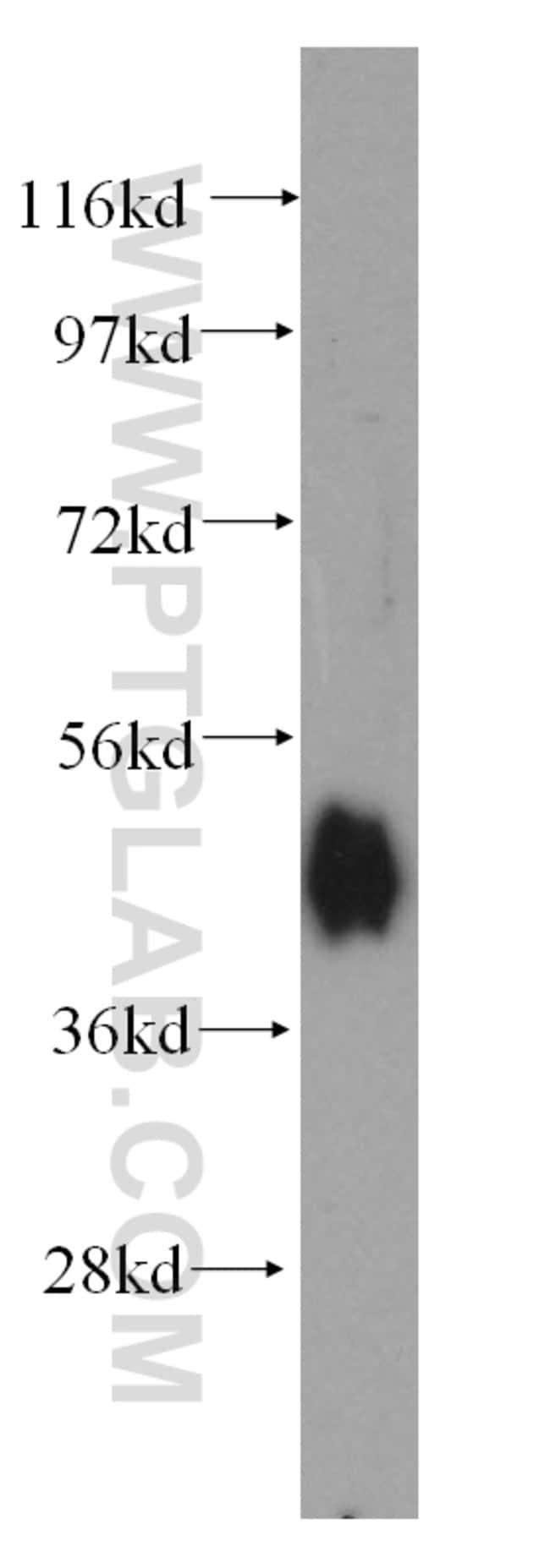 Adiponectin receptor Rabbit anti-Human, Mouse, Rat, Polyclonal, Proteintech 20 μL; Unconjugated Ver productos