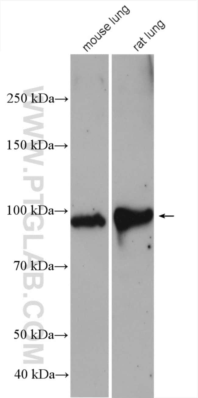 VAP1 Rabbit anti-Human, Polyclonal, Proteintech 150 μL; Unconjugated Produkte