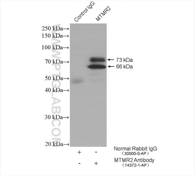MTMR2 Rabbit anti-Human, Mouse, Rat, Polyclonal, Proteintech 150 μL; Unconjugated Produkte