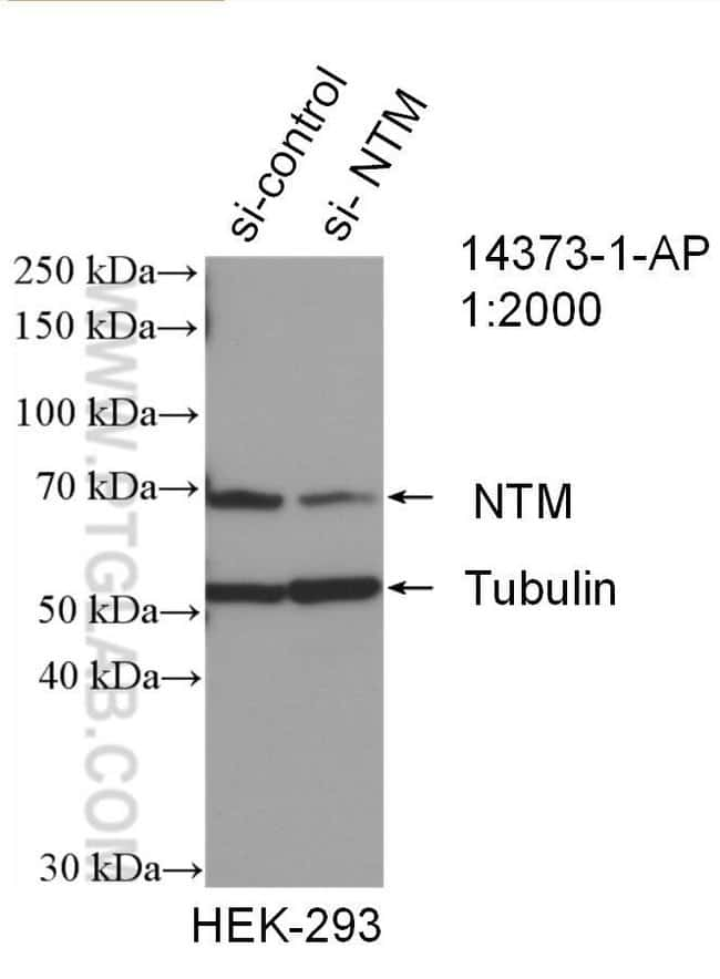 NTM Rabbit anti-Human, Mouse, Polyclonal, Proteintech 150 μL; Unconjugated voir les résultats