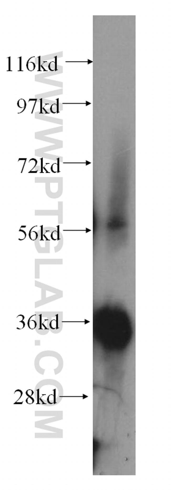 NIT1 Rabbit anti-Human, Mouse, Rat, Polyclonal, Proteintech 150 μL; Unconjugated voir les résultats