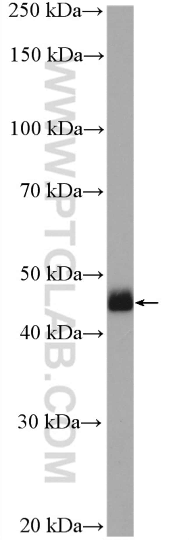 Casein Kinase 1 delta Rabbit anti-Human, Mouse, Rat, Polyclonal, Proteintech 150 μL; Unconjugated voir les résultats