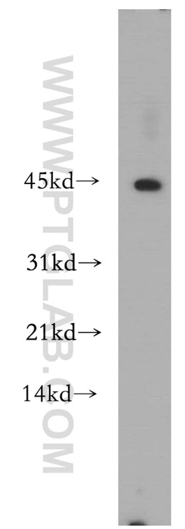 SCPx Rabbit anti-Human, Mouse, Rat, Polyclonal, Proteintech 150 μL; Unconjugated Produkte