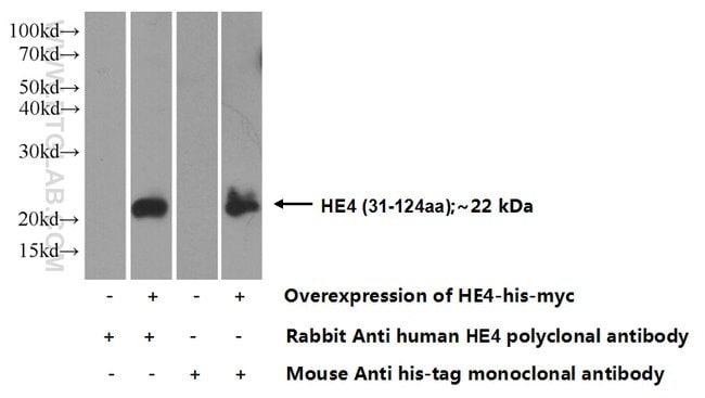 HE4 Rabbit anti-Human, Polyclonal, Proteintech 150 μL; Unconjugated Produkte