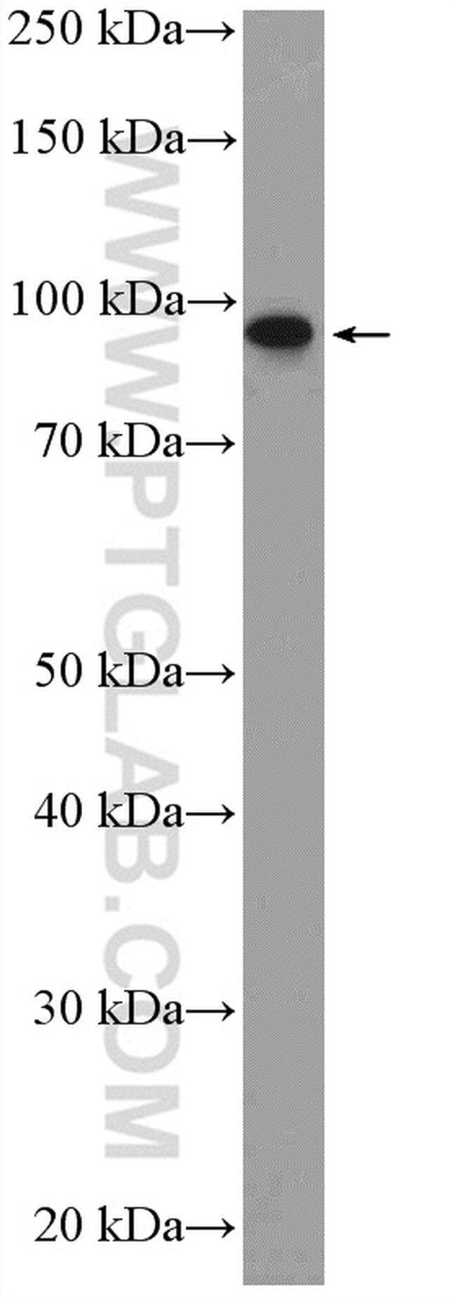 PIBF1 Rabbit anti-Human, Mouse, Rat, Polyclonal, Proteintech 150 μL; Unconjugated Produkte