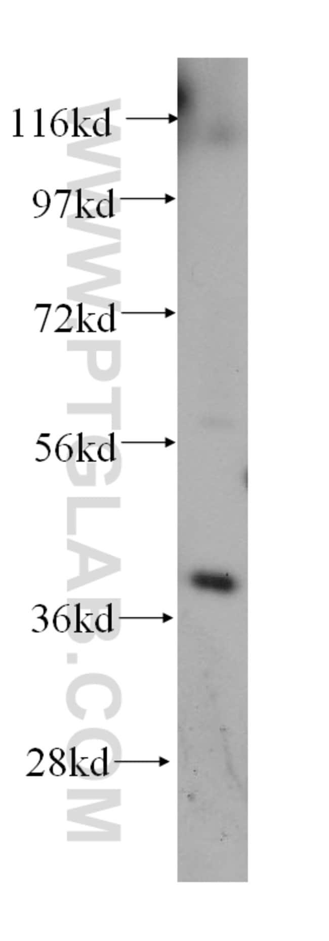 GALE Rabbit anti-Human, Mouse, Rat, Polyclonal, Proteintech 20 μL; Unconjugated Ver productos