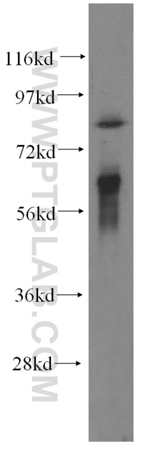 TAX1BP1 Rabbit anti-Human, Mouse, Polyclonal, Proteintech 20 μL; Unconjugated Produkte