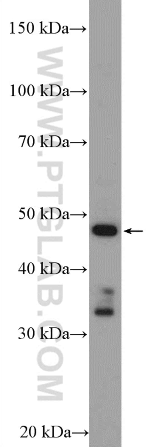 CYP17A1 Rabbit anti-Human, Polyclonal, Proteintech 20 μL; Unconjugated Ver productos