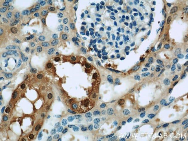 GSTA1 Rabbit anti-Human, Mouse, Rat, Polyclonal, Proteintech 150 μL; Unconjugated voir les résultats
