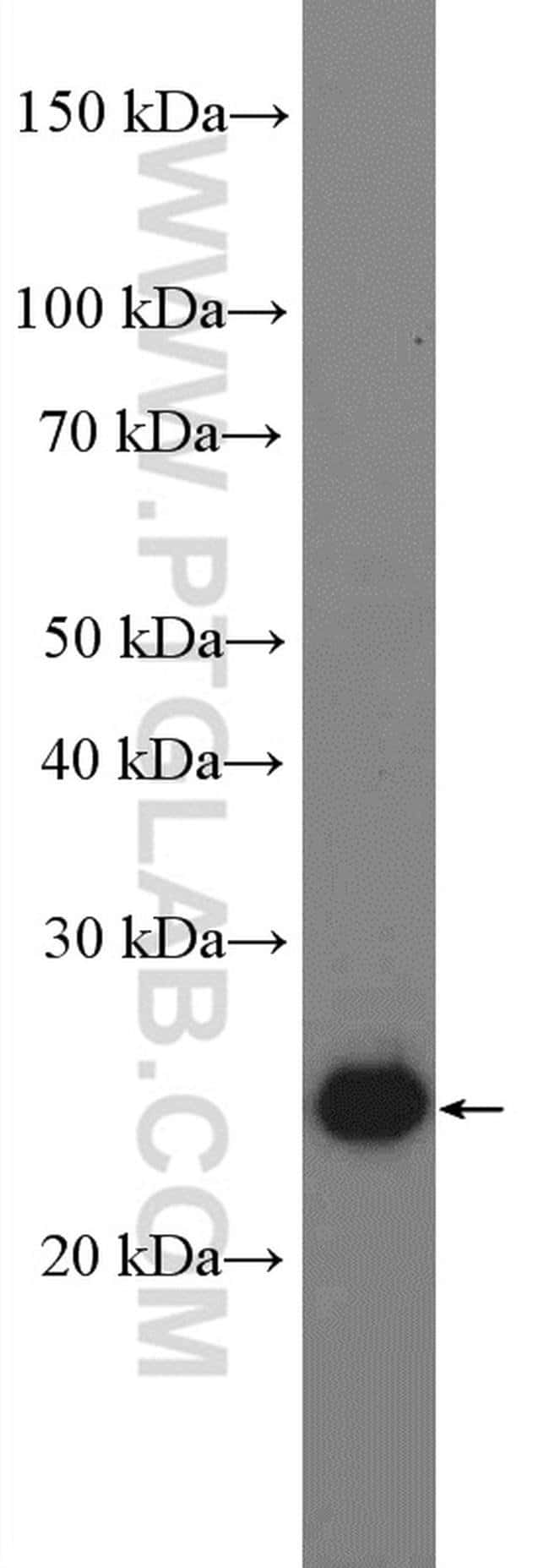 PSPH Rabbit anti-Human, Mouse, Rat, Polyclonal, Proteintech 150 μL; Unconjugated voir les résultats