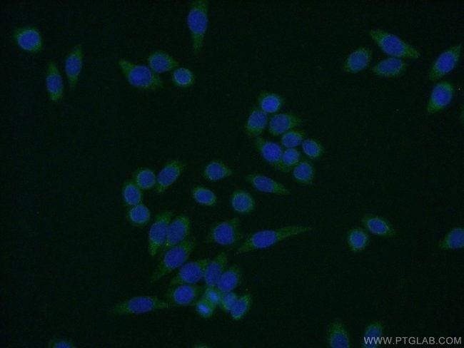 ENSA Rabbit anti-Human, Mouse, Rat, Polyclonal, Proteintech 150 μL; Unconjugated voir les résultats