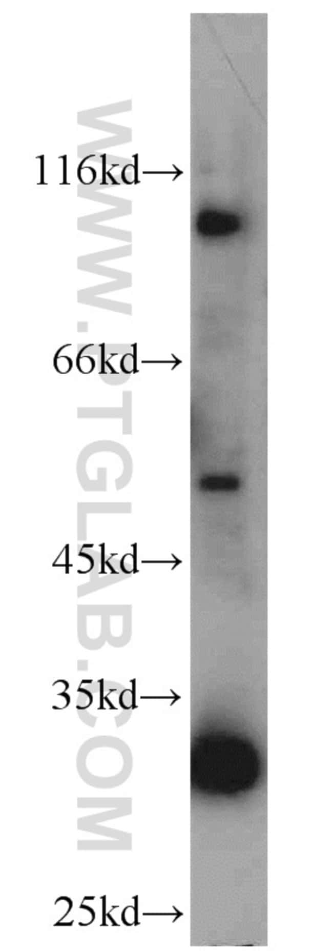 ACADVL Rabbit anti-Human, Mouse, Rat, Polyclonal, Proteintech 150 μL; Unconjugated Produkte