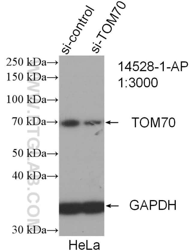 TOM70 Rabbit anti-Human, Mouse, Rat, Polyclonal, Proteintech 150 μL; Unconjugated voir les résultats
