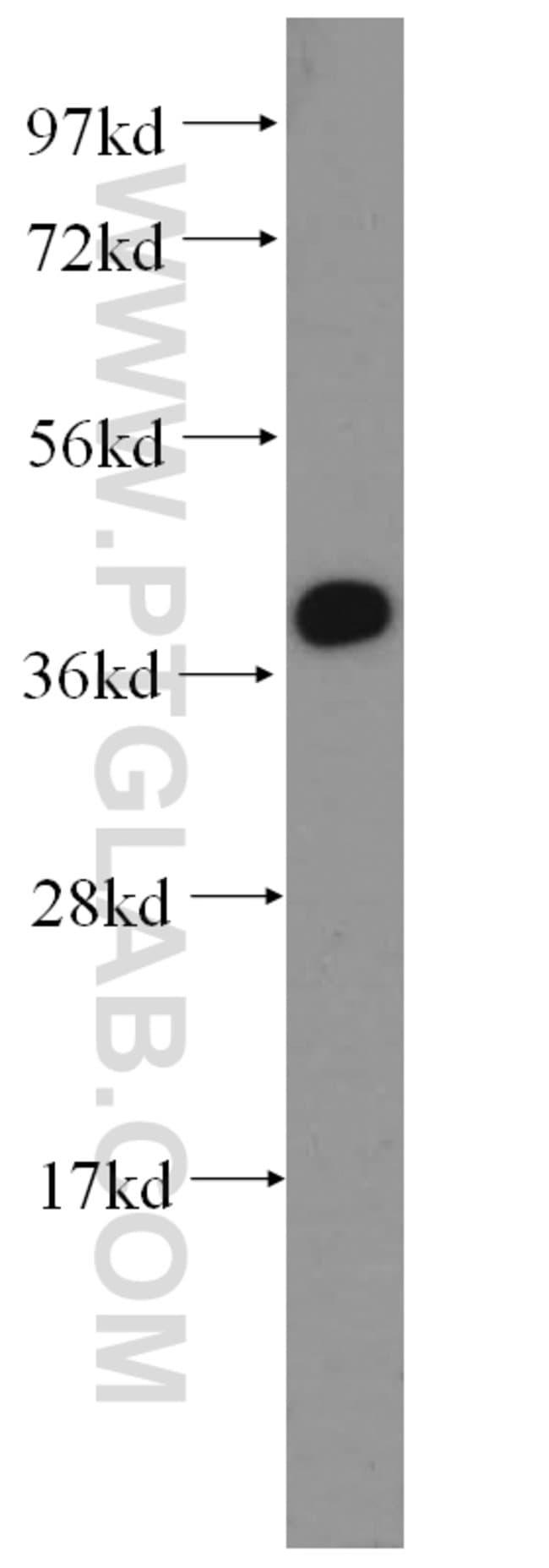 LAMR1/RPSA Rabbit anti-Human, Mouse, Rat, Polyclonal, Proteintech 20 μL; Unconjugated Ver productos