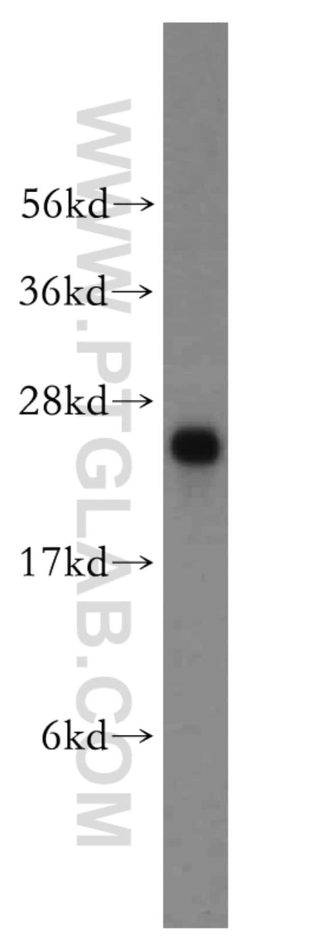 MSRA Rabbit anti-Human, Mouse, Rat, Polyclonal, Proteintech 20 μL; Unconjugated Ver productos