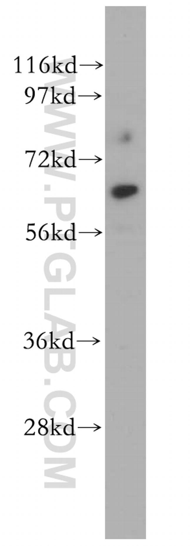 CDR2L Rabbit anti-Human, Mouse, Rat, Polyclonal, Proteintech 150 μL; Unconjugated Ver productos
