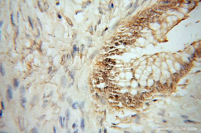 HMG20B Rabbit anti-Human, Mouse, Rat, Polyclonal, Proteintech 20 μL; Unconjugated voir les résultats