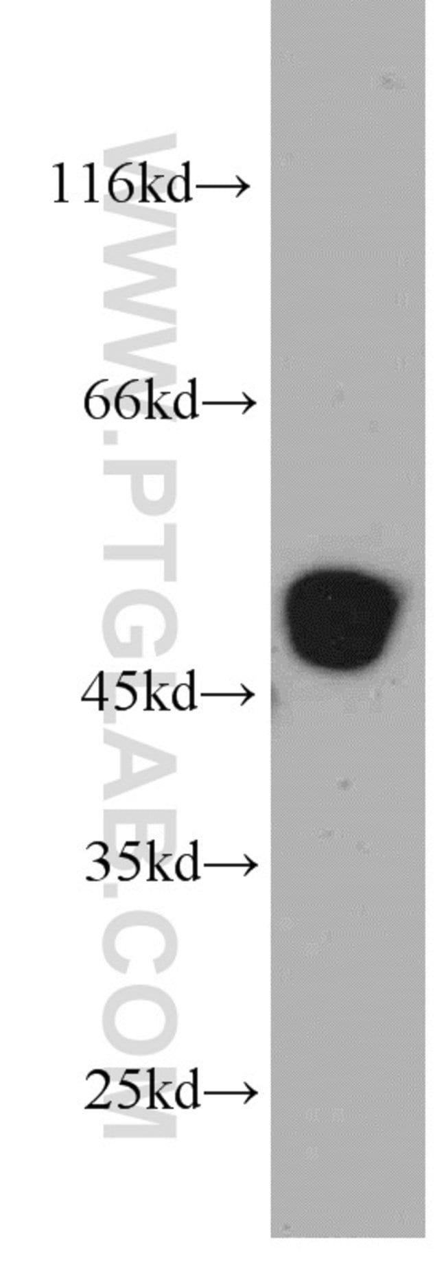 ST3GAL5 Rabbit anti-Human, Mouse, Rat, Polyclonal, Proteintech 150 μL; Unconjugated Ver productos