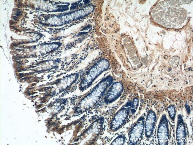 NMUR1 Rabbit anti-Human, Mouse, Polyclonal, Proteintech 20 μL; Unconjugated Produkte