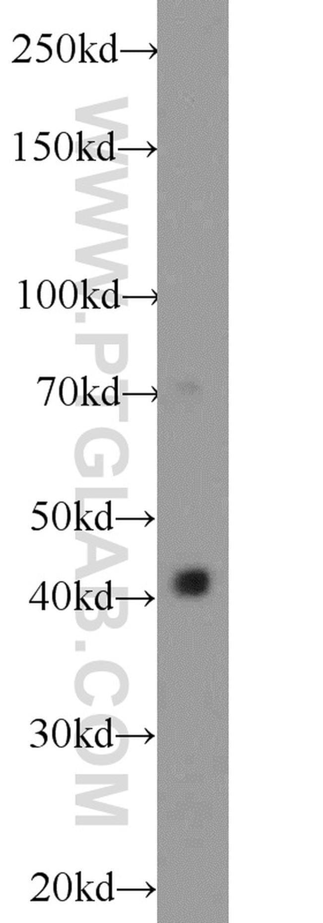 OSTM1 Rabbit anti-Human, Mouse, Polyclonal, Proteintech 150 μL; Unconjugated Ver productos