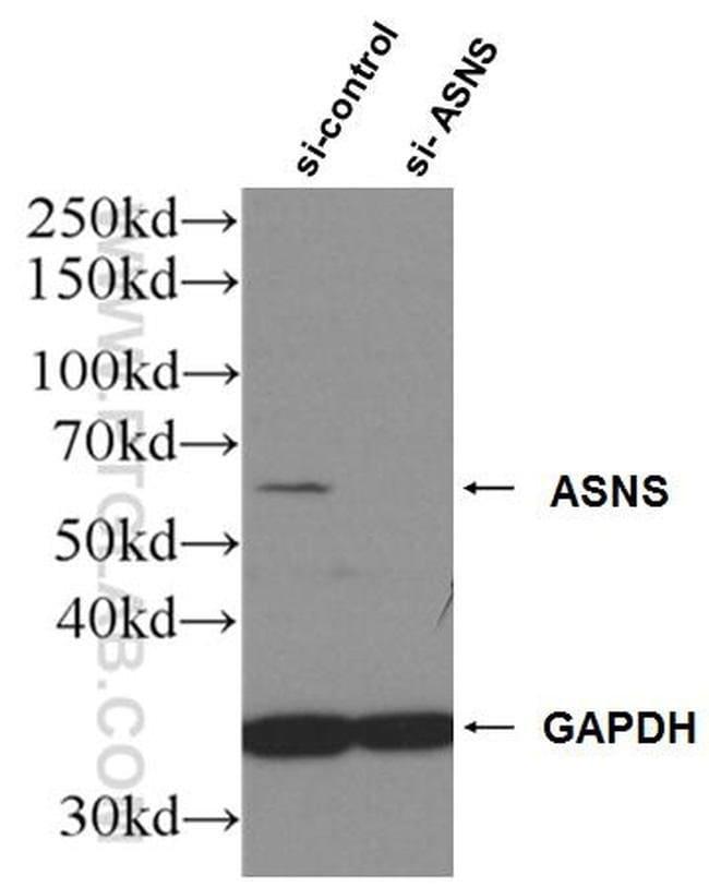 ASNS Rabbit anti-Human, Mouse, Rat, Polyclonal, Proteintech 20 μL; Unconjugated voir les résultats