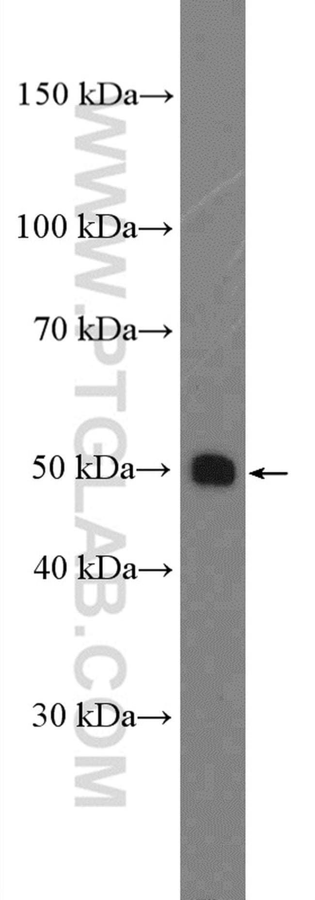 SLC44A1 Rabbit anti-Human, Mouse, Rat, Polyclonal, Proteintech 150 μL; Unconjugated Ver productos