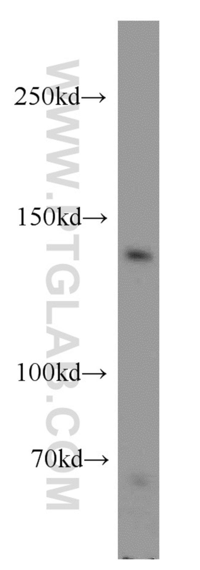 MGEA5 Rabbit anti-Human, Mouse, Rat, Polyclonal, Proteintech 150 μL; Unconjugated Ver productos