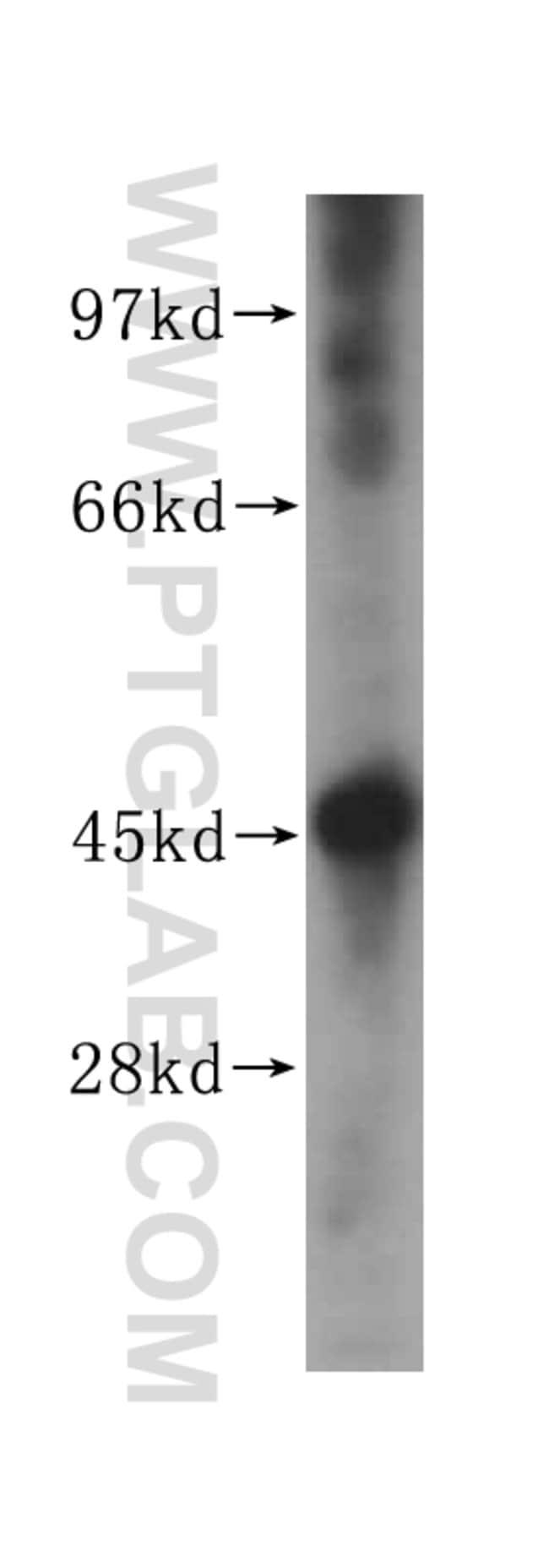 NF45 Rabbit anti-Human, Mouse, Polyclonal, Proteintech 20 μL; Unconjugated Produkte
