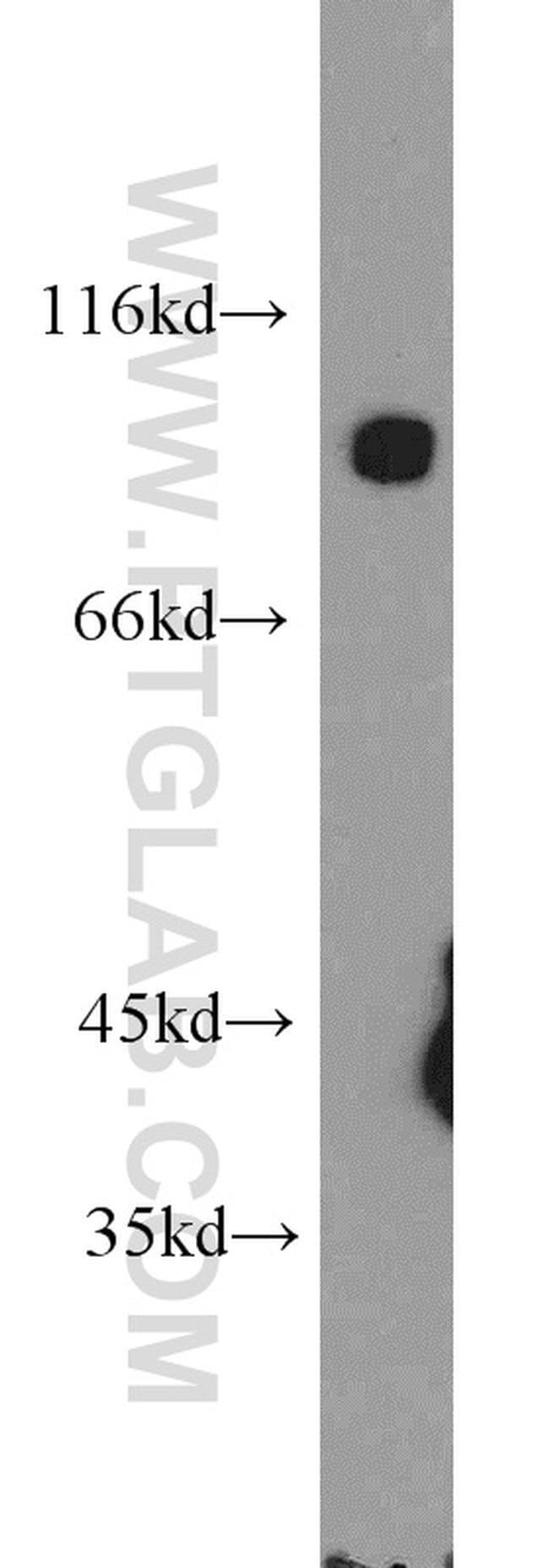 DNM3 Rabbit anti-Human, Mouse, Rat, Polyclonal, Proteintech 150 μL; Unconjugated Ver productos