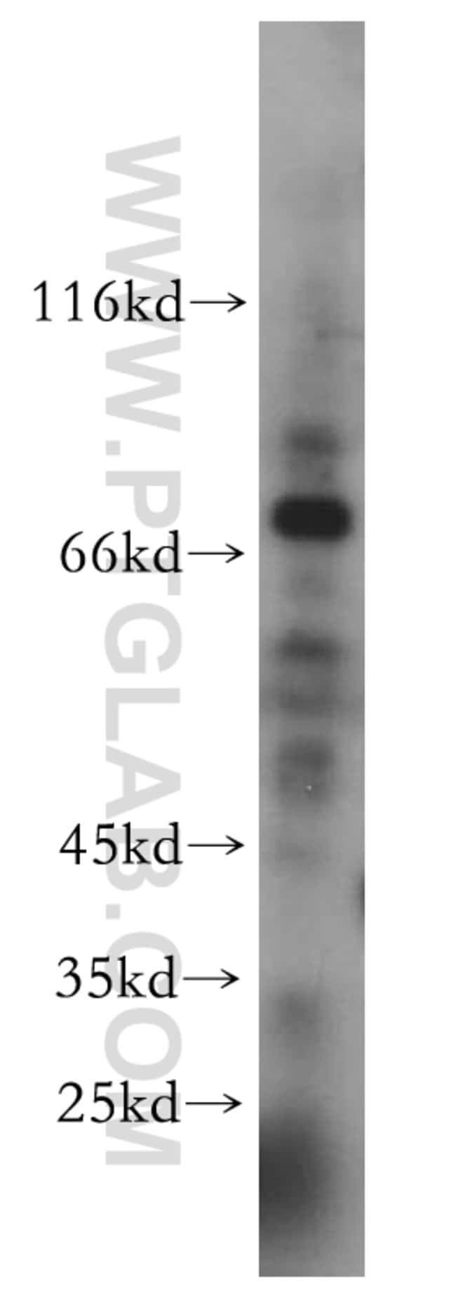CDK5RAP1 Rabbit anti-Human, Mouse, Rat, Polyclonal, Proteintech 20 μL; Unconjugated Produkte