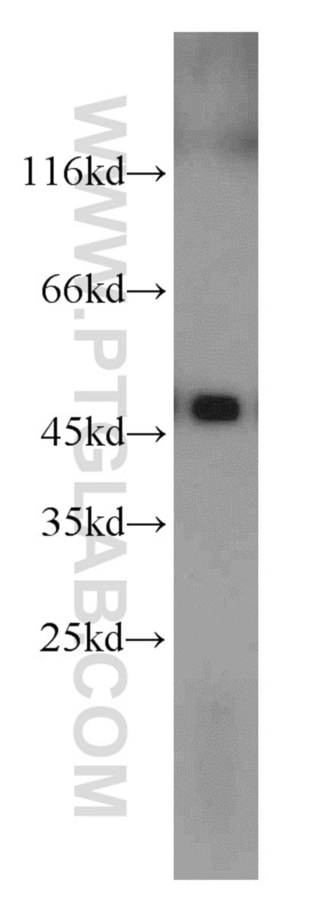 UQCRC2 Rabbit anti-Human, Mouse, Rat, Polyclonal, Proteintech 150 μL; Unconjugated Ver productos